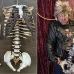 Skelecaster - rtbf
